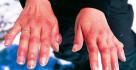 Brnění ruky a prstů