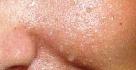Jarischův roztok a jeho účinky na pleť