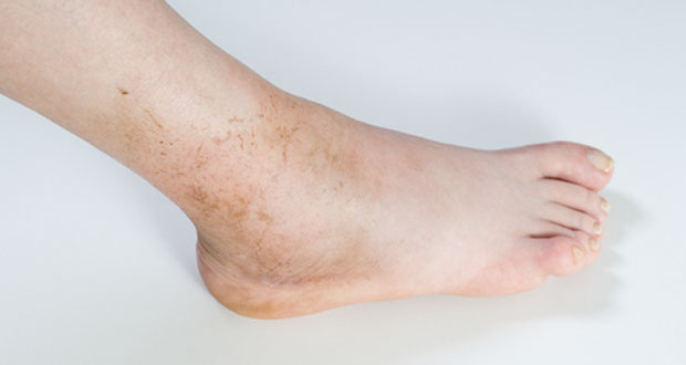 artroza kotníku otok articulațiile brațului și picioarelor drepte doare