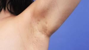 Hidrosadenitis - zánět potních žláz