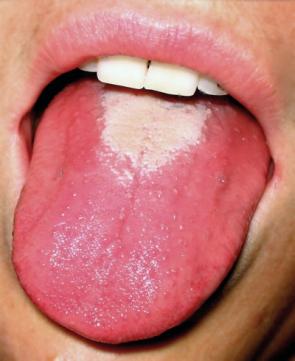 Hnědý povlak jazyka