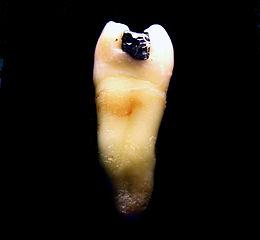 Bolest povytržení zubu