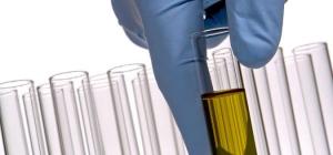 Bílkoviny vkrvi amoči