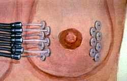 Jak probíhá ozařování prsu