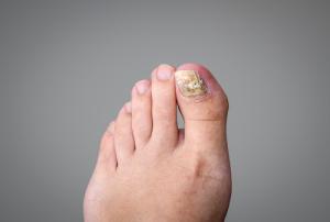 Nemoci nehtů nanohou