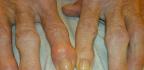 Condrosulf na osteoartrózu
