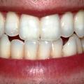 Zubní váček