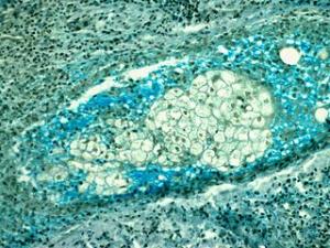 Vaginální kvasinková infekce