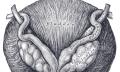 Benigní hyperplazie prostaty