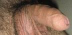 Testikulární hrudky a bulky na varlatech