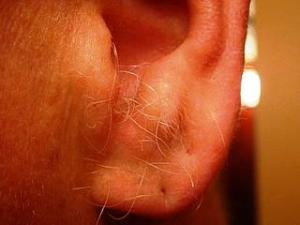 Svědění v uších
