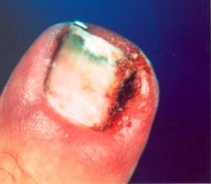 Rady proti zarůstání nehtů