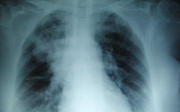 Zápal plic