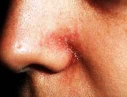 Domácí léčba seboroické dermatitidy
