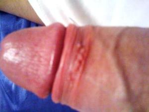 Genitální bradavice