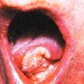 Rakovina jazyka