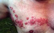 Pásový opar je pokračování neštovic