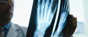 Osteopenie