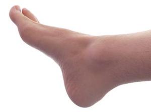 Bolest chodidel