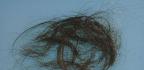 Svědění hlavy a padání vlasů