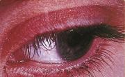 Co nazklidnění očních víček