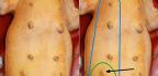 Rakovina kůže upsů