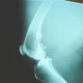 Rakovina kostí