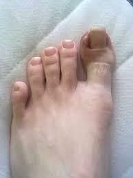 Černání nehtů upalce nohy
