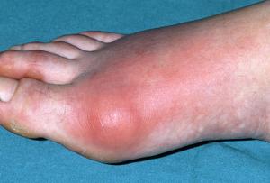 Nemoc dna – příznaky onemocnění