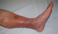 Embolie dolních končetin